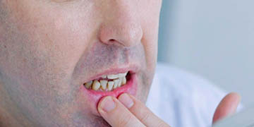 Oral-Ulcer-Clinic